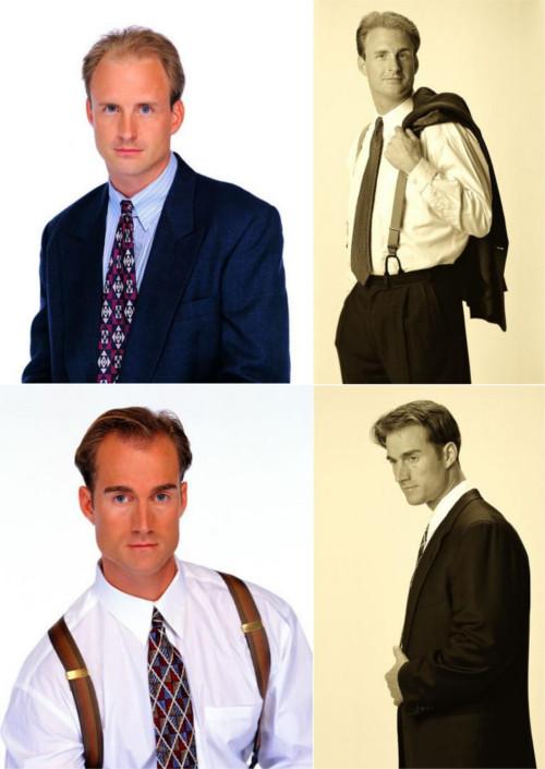 Izguba las pri moških