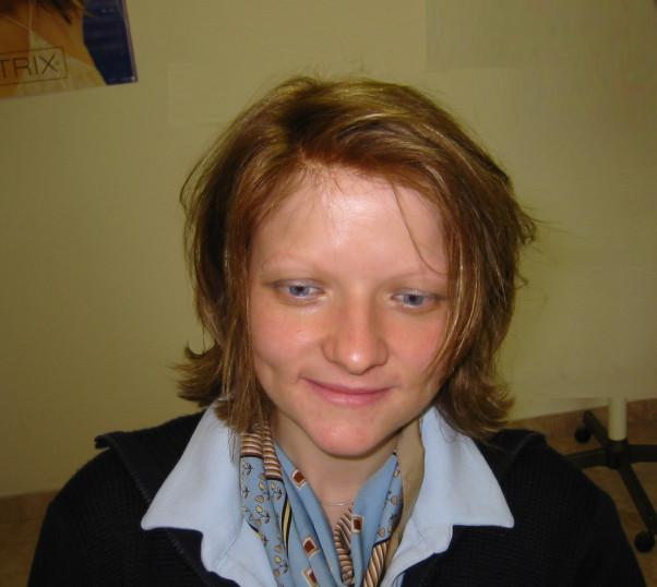 alopecija areata